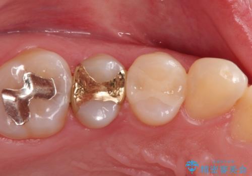 むし歯の再治療。セラミックインレーとゴールドインレーの症例 治療後