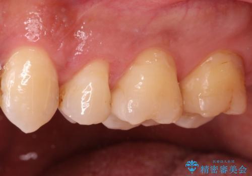 銀歯のやり直し 虫歯治療 セラミックインレーに変更の治療後