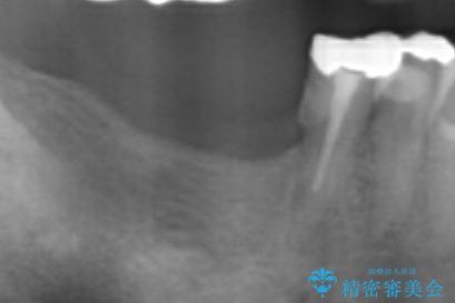 奥歯の喪失  骨造成を伴うインプラント咬合回復の治療前