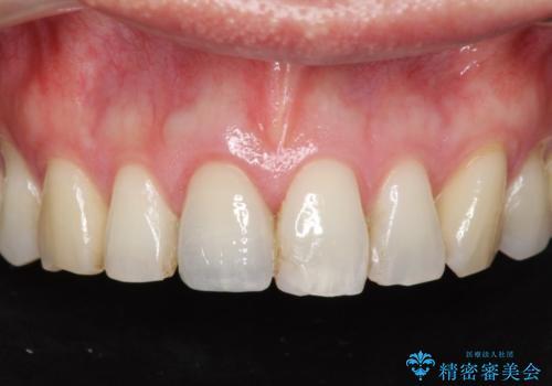 神経の死んだ前歯のレジン修復の劣化 ジルコニアクラウンによる審美回復の治療後