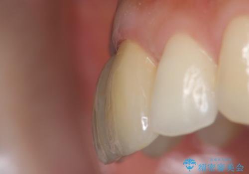 上顎前歯 審美的なブリッジへの再製作