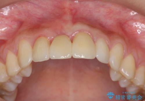 上顎前歯 審美的なブリッジへの再製作の治療後