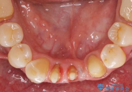 矯正治療を併用した前歯ブリッジの再作製の治療中