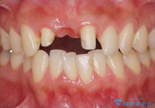 上顎前歯 審美的なブリッジへの再製作の治療中