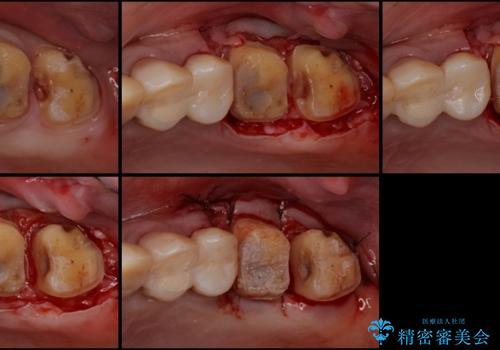 歯肉の中の深い虫歯 外科処置による適正な虫歯治療の治療中
