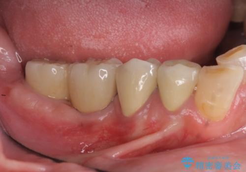 奥歯の喪失  骨造成を伴う<span class=