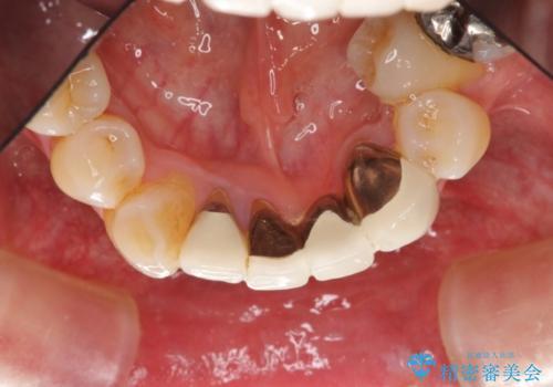 矯正治療を併用した前歯ブリッジの再作製の治療前