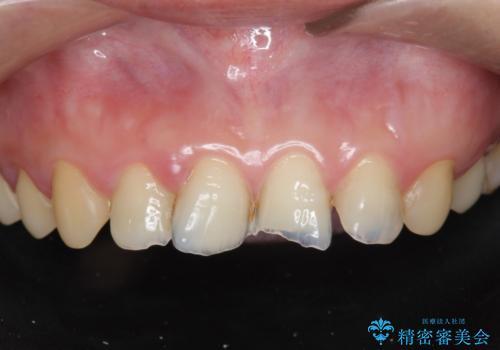 [酸蝕歯] オールセラミックジルコニアクラウン治療の治療前