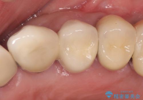[重度の骨吸収] 顎骨の再建を伴うインプラント治療の治療後