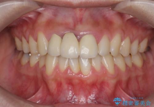 上顎前歯 審美的なブリッジへの再製作の治療前