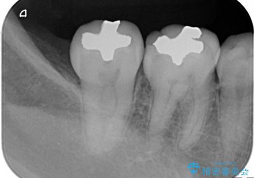 もう、むし歯になりたくない。精度の高いセラミックインレーの治療前