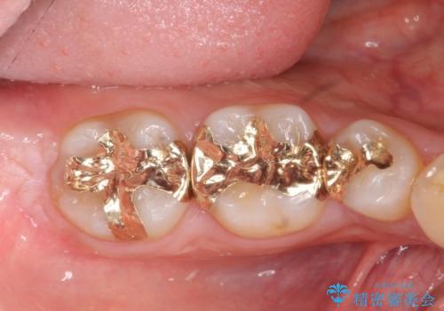 高い適合と化学的安定性 ゴールドインレー修復の症例 治療後