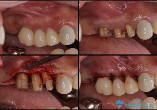 部分矯正による咬合平面の改善 オールセラミッククラウンとノンクラスプデンチャーの治療中