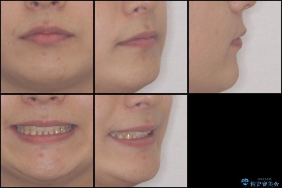 前歯のでこぼこを治したい ワイヤー矯正からインビザラインへのチェンジの治療後(顔貌)