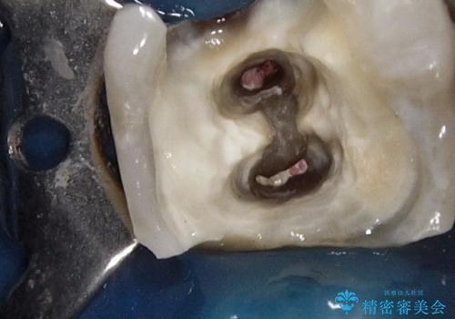 最後方臼歯の深い虫歯 歯周外科で保存するの治療中