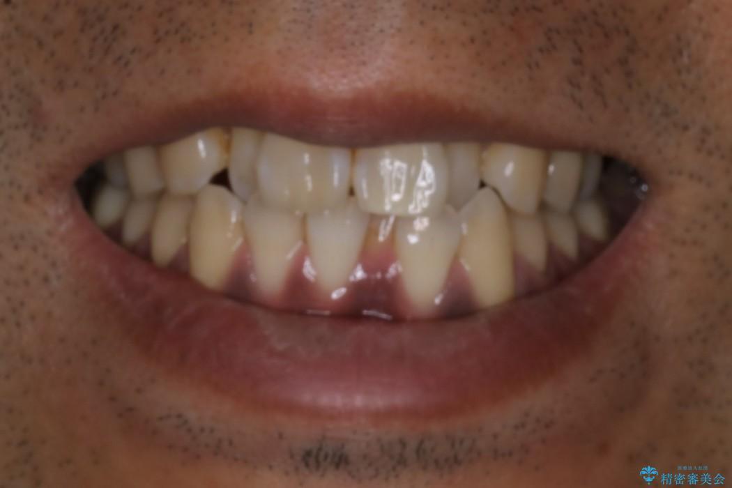 マウスピース矯正の代名詞 インビザラインによる前歯のクロスバイト治療の治療前(顔貌)