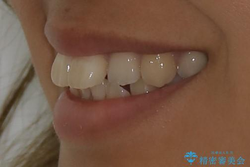インビザライン治療 ガタつきの改善と一緒に、なるべく前歯を下げたいの治療前(顔貌)