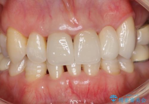 接着ブリッジ 虫歯再発によるやりかえの治療後