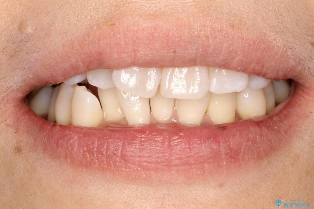 インビザラインによるかみ合わせの治療 奥歯の位置関係を是正してガタつきを治すの治療前(顔貌)