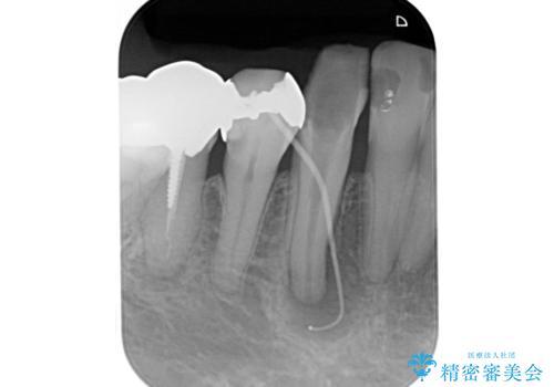 毎週薬を交換しているが、一向に治らず来院された症例(右下犬歯の根管治療:リトリートメント)の治療前