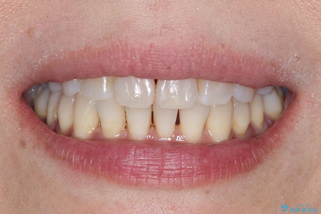 インビザラインによるかみ合わせの治療 奥歯の位置関係を是正してガタつきを治すの治療後(顔貌)