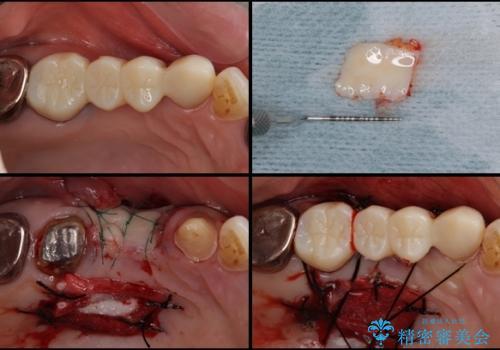 折れてしまった歯 歯周外科処置を伴うオールセラミックブリッジ治療の治療中