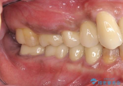 著しく腫れた歯ぐき 歯肉と歯の改善を行う歯周外科の治療後