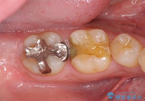 高い適合と化学的安定性 ゴールドインレー修復の症例 治療前