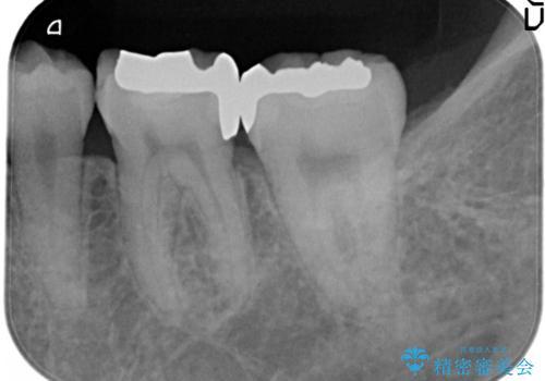 精度の高いむし歯治療。の治療後