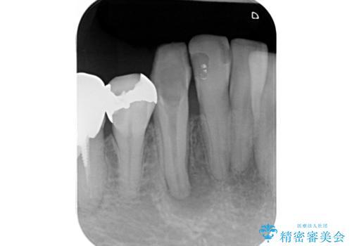 毎週薬を交換しているが、一向に治らず来院された症例(右下犬歯の根管治療:リトリートメント)の症例 治療前