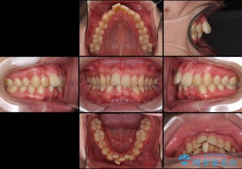 前歯のでこぼこを治したい ワイヤー矯正からインビザラインへのチェンジの治療前