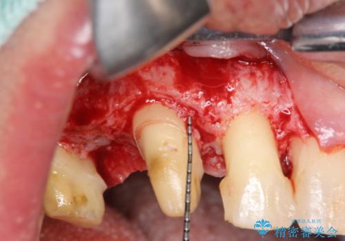 多発した縁下カリエス 歯周外科を併用する虫歯治療の治療中