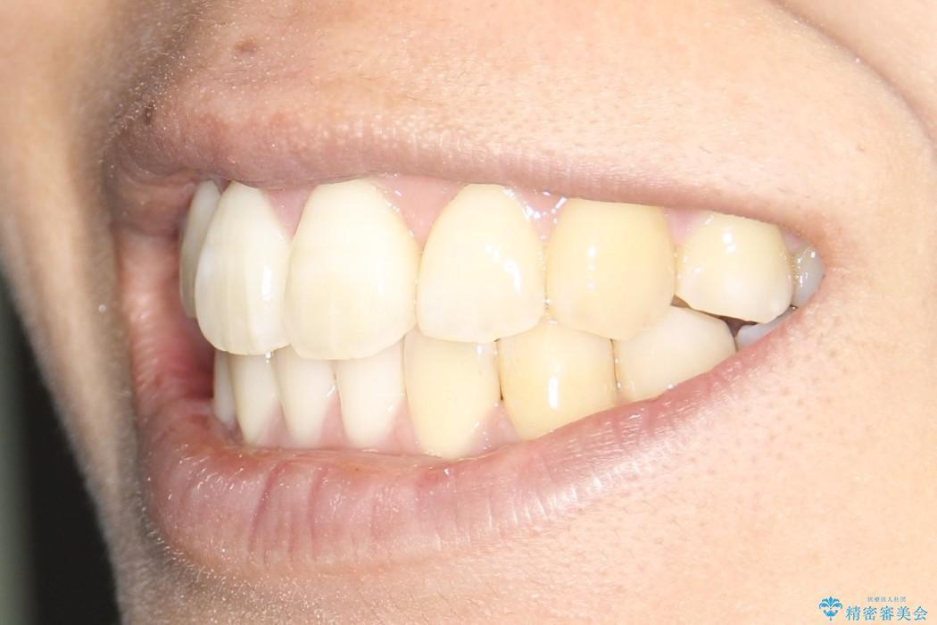 インビザライン治療 ガタつきの改善と一緒に、なるべく前歯を下げたいの治療後(顔貌)