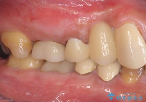 著しく腫れた歯ぐき 歯肉と歯の改善を行う歯周外科の治療前