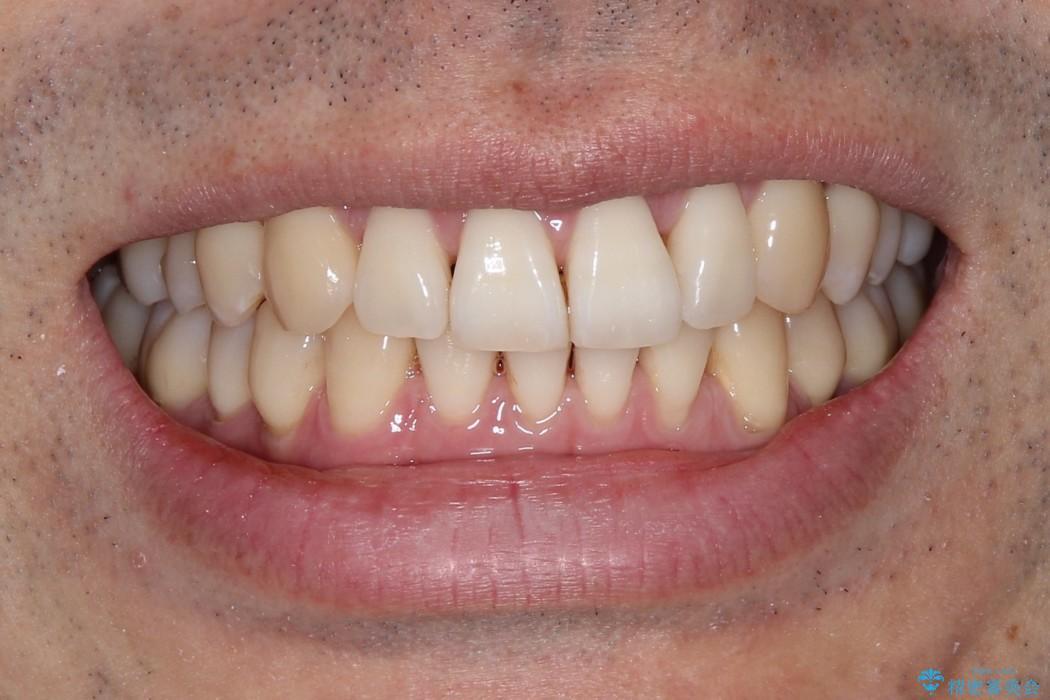 変則的なかみ合わせ インビザラインによるかみ合わせとガタつきの治療の治療後(顔貌)
