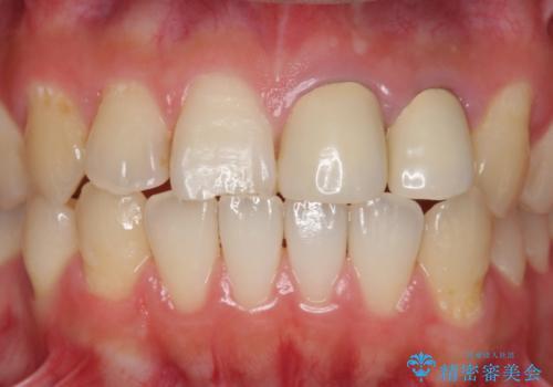 前歯 保険適応クラウンからジルコニアクラウンへのやりかえの治療前