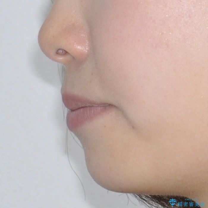 ハーフリンガル 矯正 抜歯して口元の改善を!の治療前(顔貌)
