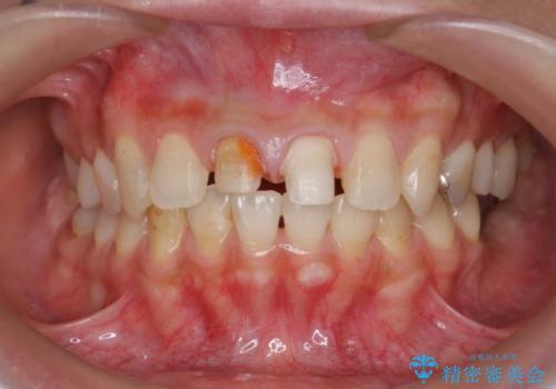 前歯 審美セラミック治療の治療中