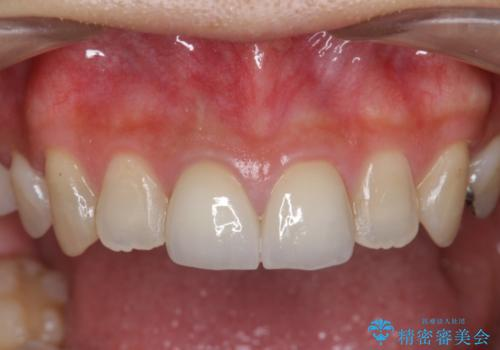 前歯 審美セラミック治療の治療後