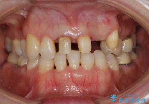 接着ブリッジ 虫歯再発によるやりかえの治療中