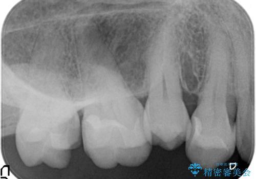 つめものが欠けた 奥歯のセラミックインレーの治療前