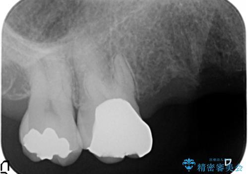金属床義歯・PGA(ゴールド)クラウン 合わない入れ歯の新製 の治療前