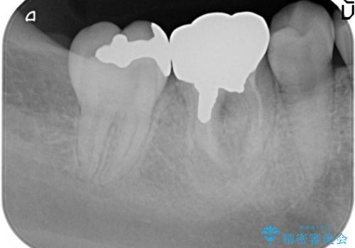 歯の高さがなく、被せ物が外れる 歯周外科手術で解決の治療前