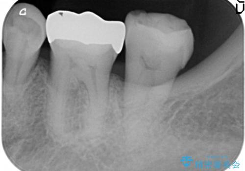 古い材料が欠けてしまった奥歯の修復補綴の治療前