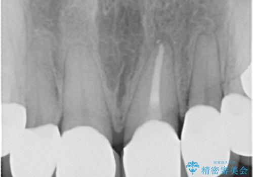 咬み合わせの修正を含めた前歯のオールセラミック修復 神経のない歯は根管治療からの治療後