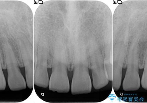 オールセラミッククラウン 上顎前歯部の隙間をセラミック矯正での治療前