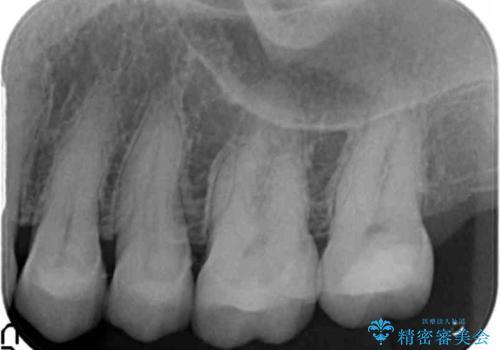 銀歯を白くしたい 40代女性の治療後