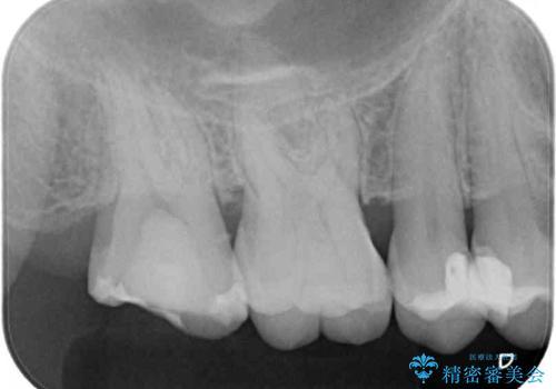 治療途中の奥歯をセラミックに 根管治療と審美歯科治療の治療前