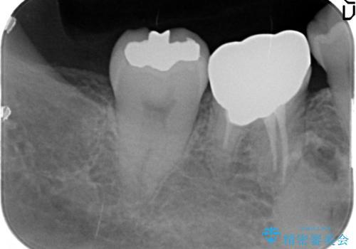 全顎矯正+セラミック治療による口腔内の総合リコンストラクションの治療前