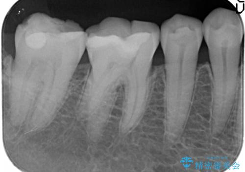 奥歯の再治療 根管治療からやり直す&セラミックできれいに咬合回復の治療前